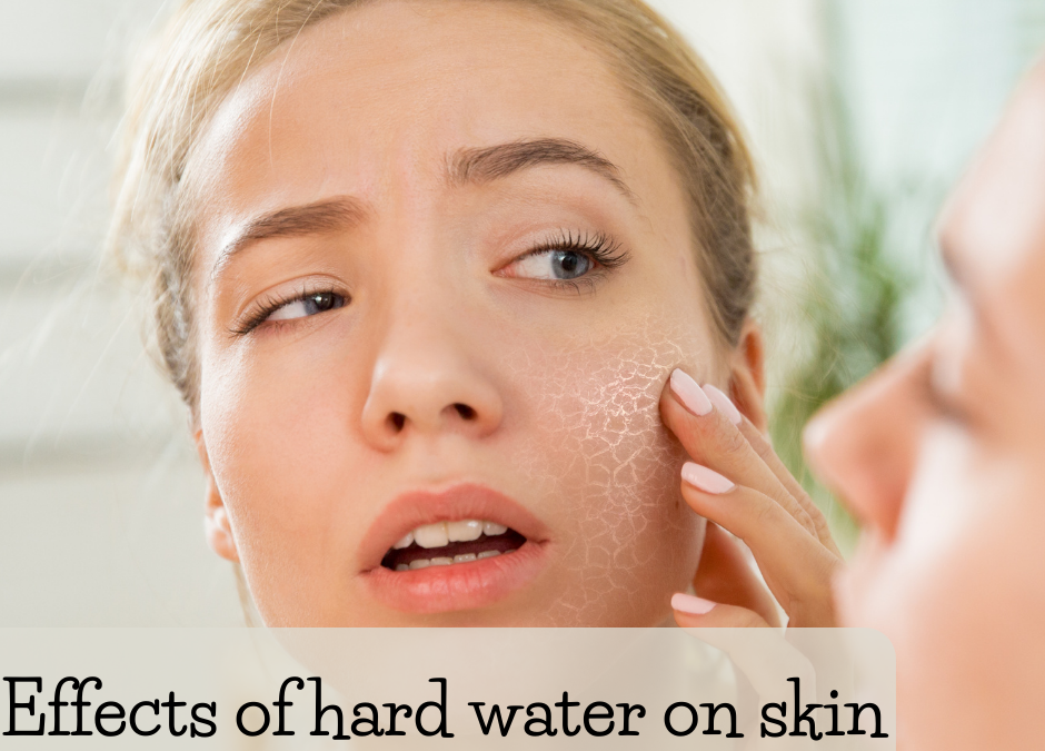 Why Is Hard Water On Skin a Problem?